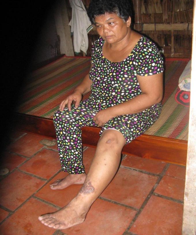 Những dấu bệnh vẫn còn trên chân, tay bà Cốt.