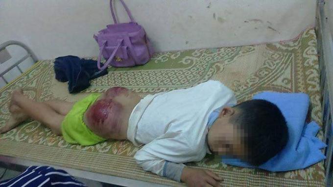 Hình ảnh cháu Long bị bố đánh thậm tệ được cộng đồng mạng chia sẻ. (Nguồn: Tây Bắc 24h)