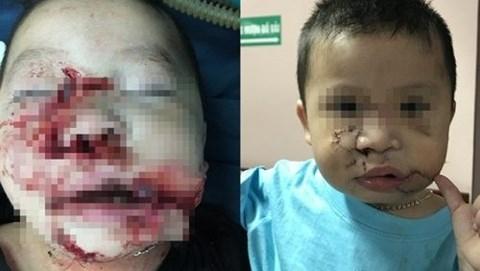 Bệnh nhi trước và sau khi được phẫu thuật tạo hình (Ảnh: Bs cung cấp)