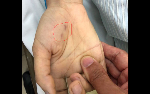 Vết thương chó cắn bàn tay phải của chị C. Ảnh giadinh.net