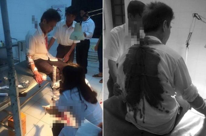 Nạn nhân may mắn qua cơn nguy kịch và đang đuợc cấp cứu tại bệnh viện.Nguồn: BEATVN