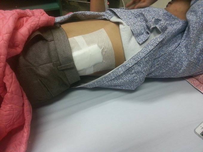 Anh Phạm Văn Toàn bị đâm vào mạn sườn đang được cấp cứu tại bệnh viện Xanh Pôn.