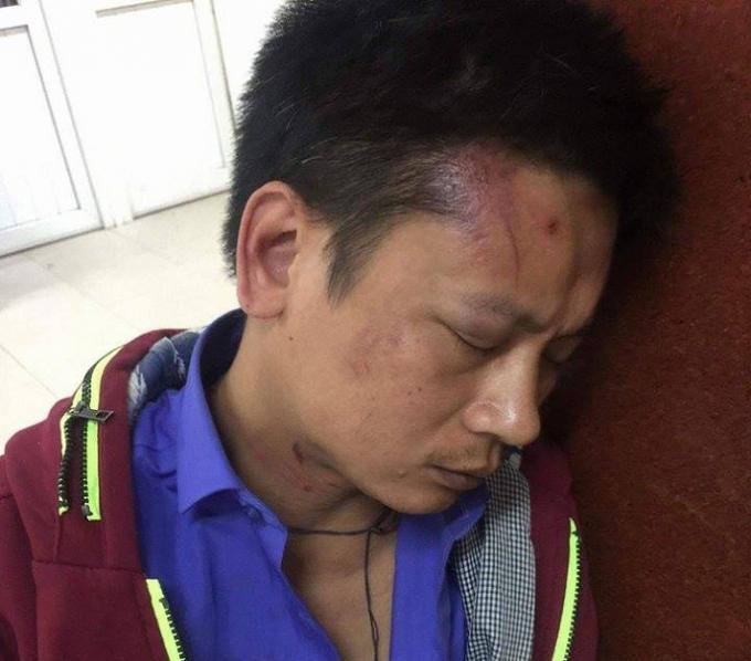 Anh P. bị thâm tím mặt do bị bảo vệ hành hung.