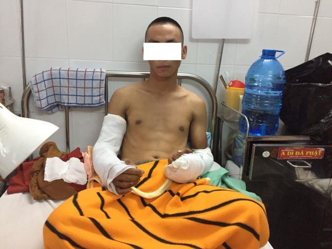 Nạn nhân Bùi V. T. bị chém đứt gân hai cánh tay