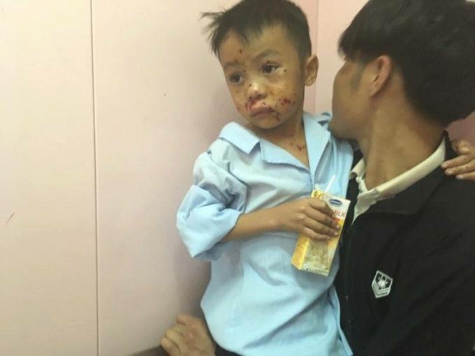 Em Trần Bảo Thạch bị thương vùng mặt và ngực vì đốt vật lạ phát nổ.