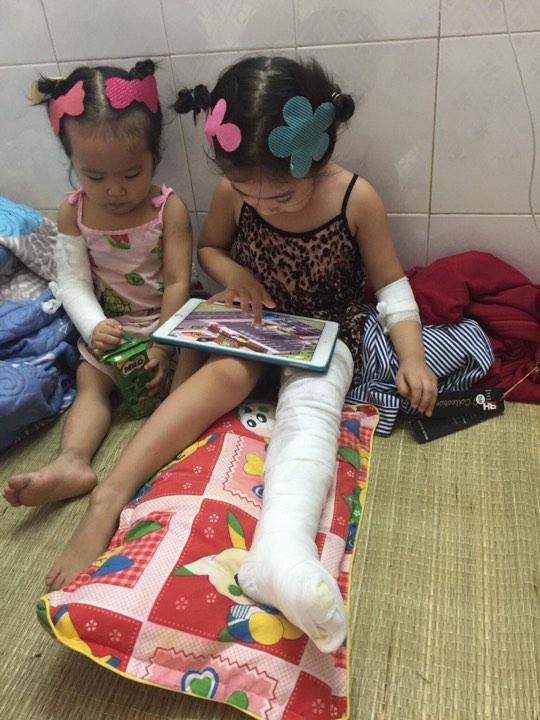 Hai cháu Linh Đan 4 tuổi và Linh Nhi 2 tuổi vừa được các bác sỹ bệnh viện Bỏng trung ương cấy ghép da.
