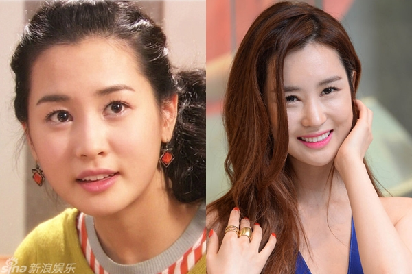 Phẫu thuật thẩm mỹ giúp Lee Da Hae xinh đẹp và quyến rũ hơn nhưng dường như nữ diễn viên đã lạm dụng chúng. Khuôn mặt của cô trở nên cứng nhắc, kém biểu cảm.