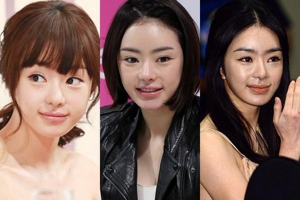 Từ diện mạo xinh xắn như búp bê, Seo Woo ngày càng khác lạ và kém sắc. Nữ diễn viên Cinderella's Sister là một trong những trường hợp lạm dụng phẫu thuật thẩm mỹ đáng tiếc nhất trong showbiz Hàn.