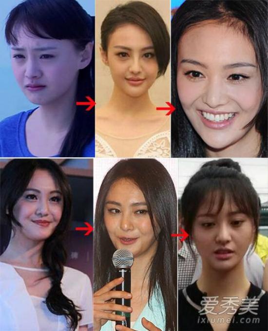 Sao nữ 9x Trịnh Sảng mất đi vẻ ngây thơ trong sáng thời Cùng ngắm mưa sao băng sau khi đại tu khuôn mặt để trở nên xinh đẹp hơn.