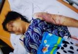 Cô gái 18 tuổi bị đánh sảy thai chỉ vì khoản nợ 1,6 triệu đồng của anh