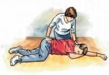 Nguy cơ đột quỵ ở người tăng huyết áp và cách sơ cứu