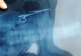 """Hoảng hồn phát hiện kéo bị """"bỏ quên"""" trong bụng sau gần 20 năm phẫu thuật"""