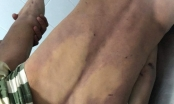 Đồng Nai: Điều tra nguyên nhân nam thanh niên tử vong nghi do bị đánh trong buồng tạm giam