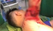 Nghệ An: Đi tắm biển Cửa Lò, bé trai nhập viện vì va phải chân vịt của thuyền