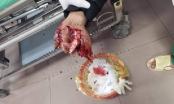 Pháo phát nổ khiến một thiếu niên nát bàn tay