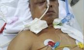 Vụ án thương binh bị tấn công tổn hại 80% sức khoẻ: Gia đình nạn nhân sẽ khiếu nại