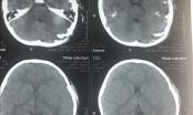 Phẫu thuật thành công cho bé 4 tuổi bị chó cắn hở sọ não