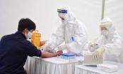Quảng Ninh: Điều động y bác sỹ sang chi viện cho Bắc Giang xét nghiệm COVID-19