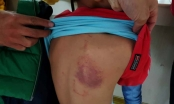 Thêm một vụ cô giáo đánh bầm dập lưng học sinh lớp 2 tại Hải Phòng
