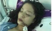 Thiếu nữ ở Bắc Ninh bị rạch mặt phải khâu 60 mũi
