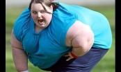 Người béo phì có nguy cơ mắc ung thư cao hơn 50%