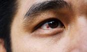 3 đốm đen xuất hiện trên cơ thể cảnh báo bệnh tật