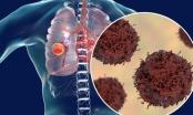 Dấu hiệu đáng ngạc nhiên này ở lưng cảnh báo ung thư phổi