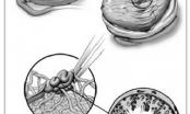 Kỹ thuật vi phẫu trích tinh trùng từ tinh hoàn: Cứu tinh cho các cặp vợ chồng hiếm muộn