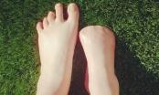Người phụ nữ phải cắt bỏ 5 ngón chân vì để cá rỉa trong spa