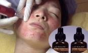 Đình chỉ lưu hành mỹ phẩm Acne control serum trị mụn