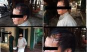Hải Phòng: Vì sao Công an quận Đồ Sơn không thụ lý vụ côn đồ đánh người gây chấn thương sọ não?