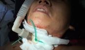Thái Nguyên: Nữ chủ tiệm cắt tóc bị cứa cổ đã qua cơn nguy kịch