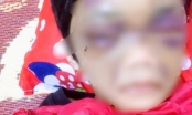 Hải Dương: Điều tra vụ bé gái 6 tuổi bị mẹ đẻ bạo hành đến mức phải nhập viện