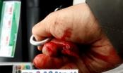 Vụ nhà báo Đỗ Doãn Hoàng bị hành hung: Đã giả chết vẫn bị đánh đập