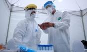 Kết quả xét nghiệm 152 trường hợp F1 của ca người Nhật Bản nghi mắc COVID-19