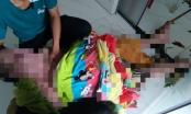 TP HCM: Người đàn ông bị bỏng nặng dẫn đến tử vong sau khi xông hơi tại phòng khám Đông y