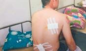 Ninh Bình: Phụ xe côn đồ, cầm kiếm chém người trọng thương tại bến xe
