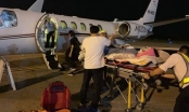 Vụ Việt kiều bị tạt axit: Thời gian vàng để sơ cứu nạn nhân chỉ vỏn vẹn... 5 giây