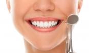 7 sự thật ít biết về dịch vụ thẩm mỹ răng sứ