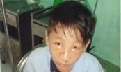 Thái Bình: Thiếu niên bị rách mũi sau khi làm việc với Công an