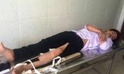 TP HCM: Thanh niên lái xe tông gãy chân cảnh sát giao thông