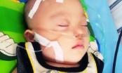 Pháp luật Plus hỗ trợ cháu bé mắc bệnh tim bẩm sinh tại Bệnh viện Nhi Trung ương