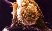 Mã hoá kháng nguyên - Đột phá mới trong nghiên cứu vắc xin ung thư