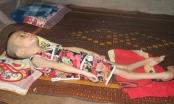 Quỹ Nhịp cầu Plus sẻ chia với bé gái 6 tuổi nặng chưa đầy 8 kg ở Nghệ An