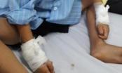 Vụ mổ nhầm tay trái để rút đinh ở Nghệ an: Toàn bộ kíp mổ bị kỷ luật