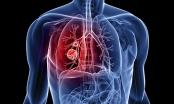 Những tác nhân gây ung thư phổi nguy hiểm hơn hút thuốc lá