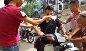 Hà Nội: Nam thanh niên bị thanh sắt đập trúng mặt phải nhập viện cấp cứu