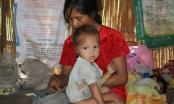 Ở nước ta, cứ 4 trẻ dưới 5 tuổi thì 1 trẻ bị thấp còi