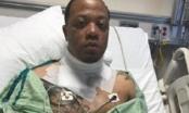 iPhone hở điện khiến nạn nhân bị giật, bỏng nặng nhiều chỗ