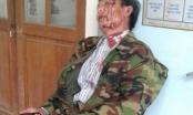 Thừa thiên Huế: Trưởng Công an bị cho thôi chức vì đánh dân nhập viện